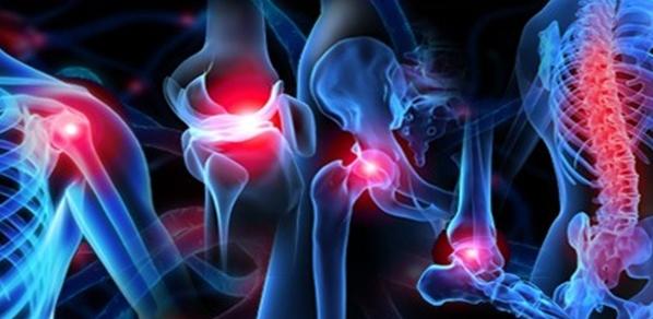 Основные заболевания суставов. Как восстановить хрящевую ткань?