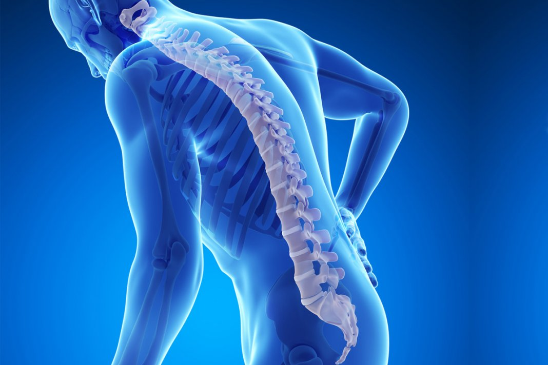 Болезнь остеопороз. Как развивается?