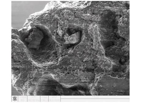 Павлова Т.В., Башук И.П. «Клинико-морфологические особенности дегенеративных изменений костной ткани на фоне остеопороза в возрастном аспекте»