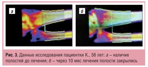 Остеомед Форте - новый подход в лечениее пресенильного и сенильного остеопороза