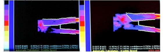 Остео-вит D3 при повторных переломах у детей и подростков с низкой минеральной плотностью костей