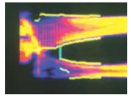 Остеомед — эффективный регулятор минеральной плотности костей и закрытия полостных образований при лечении пресенильного и сенильного остеопороза