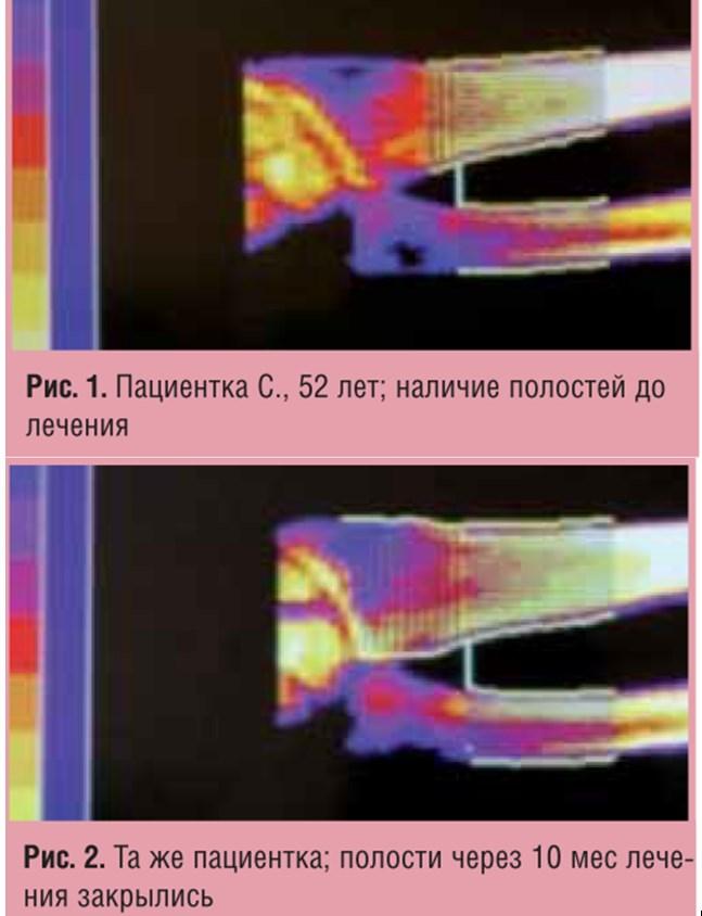Влияние Остеомеда Форте на гормональный статус и течение остеопороза у женщин с дефицитом андрогенов в постменопаузе