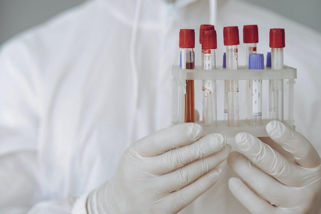 густая кровь при коронавирусе